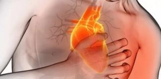 infarto do miocardio
